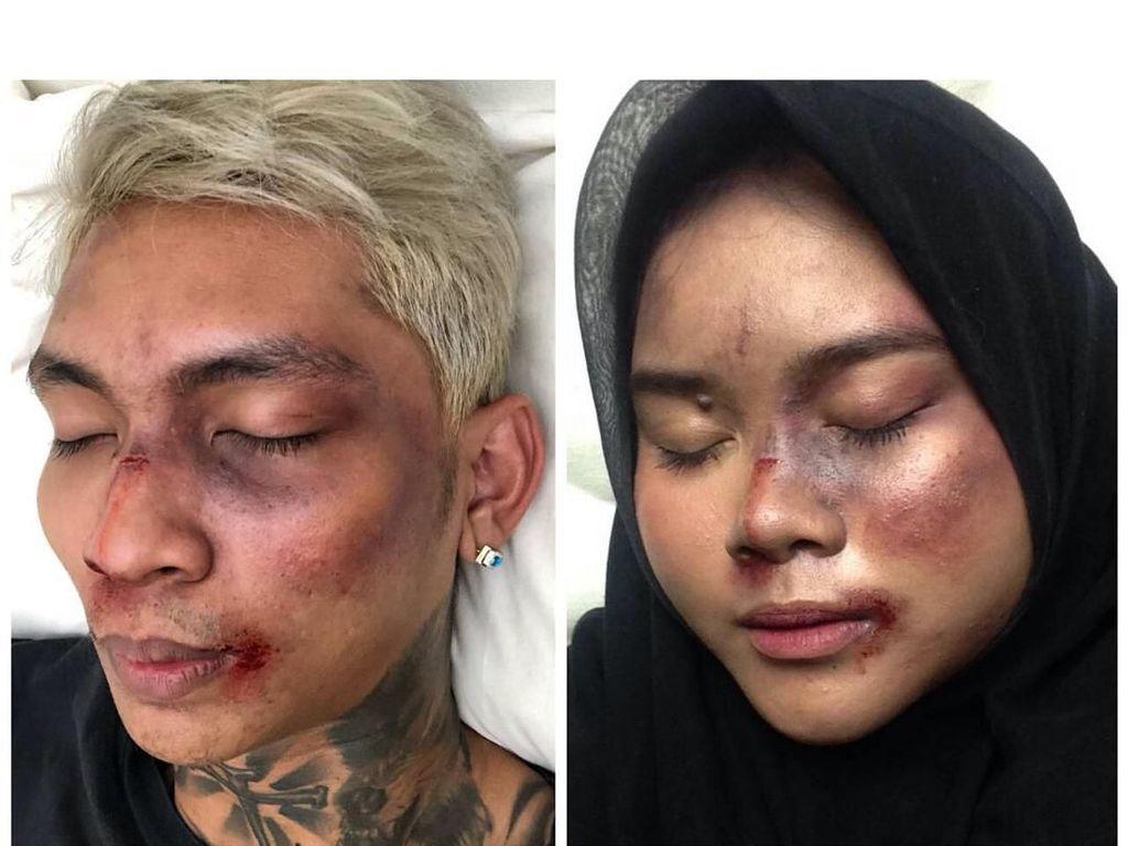 Viral Tutorial Makeup Muka Babak Belur Young Lex, Seperti Ini Hasilnya