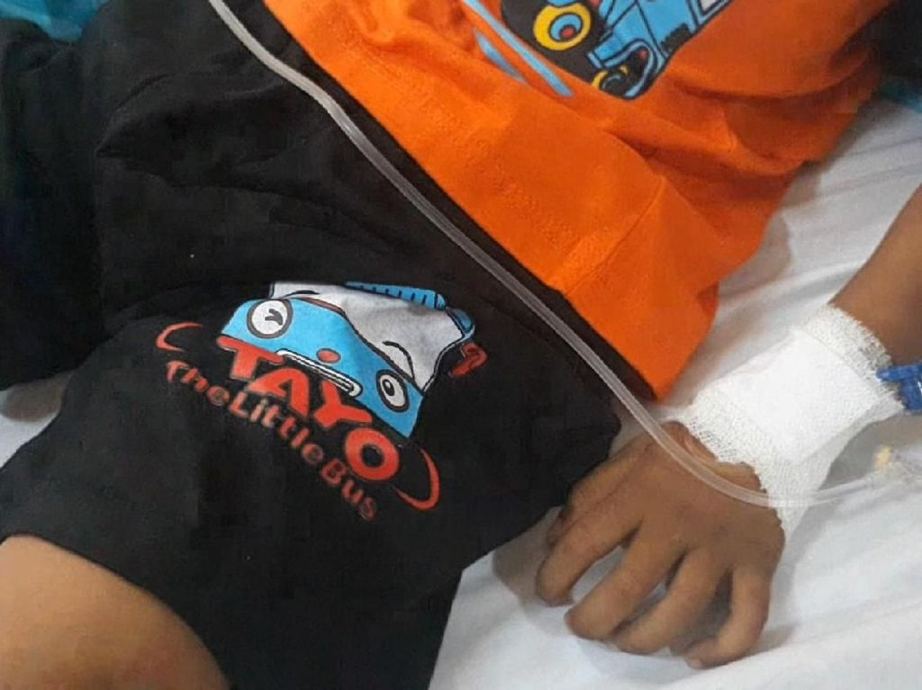 Bocah di Aceh Lumpuh Usai Vaksin MR, Ini Kata Kemenkes