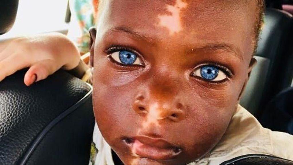 Mereka Bermata Biru Indah Karena Sindrom Waardenburg