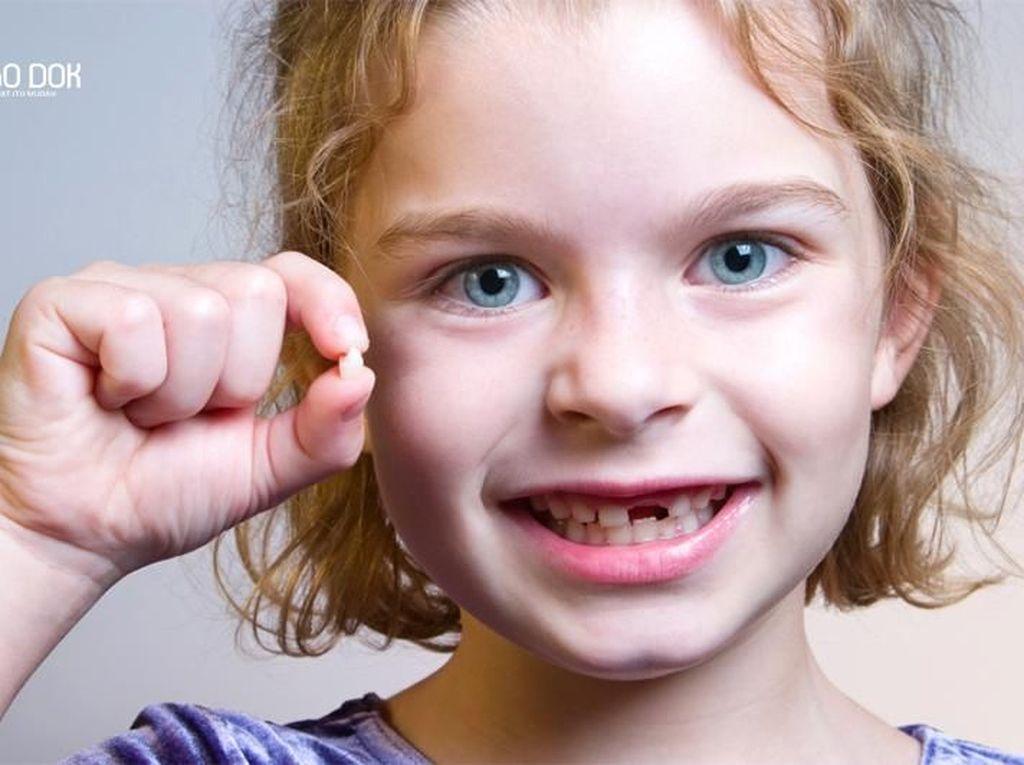 Penyebab dan Cara Mencegah Gigi Patah pada Anak