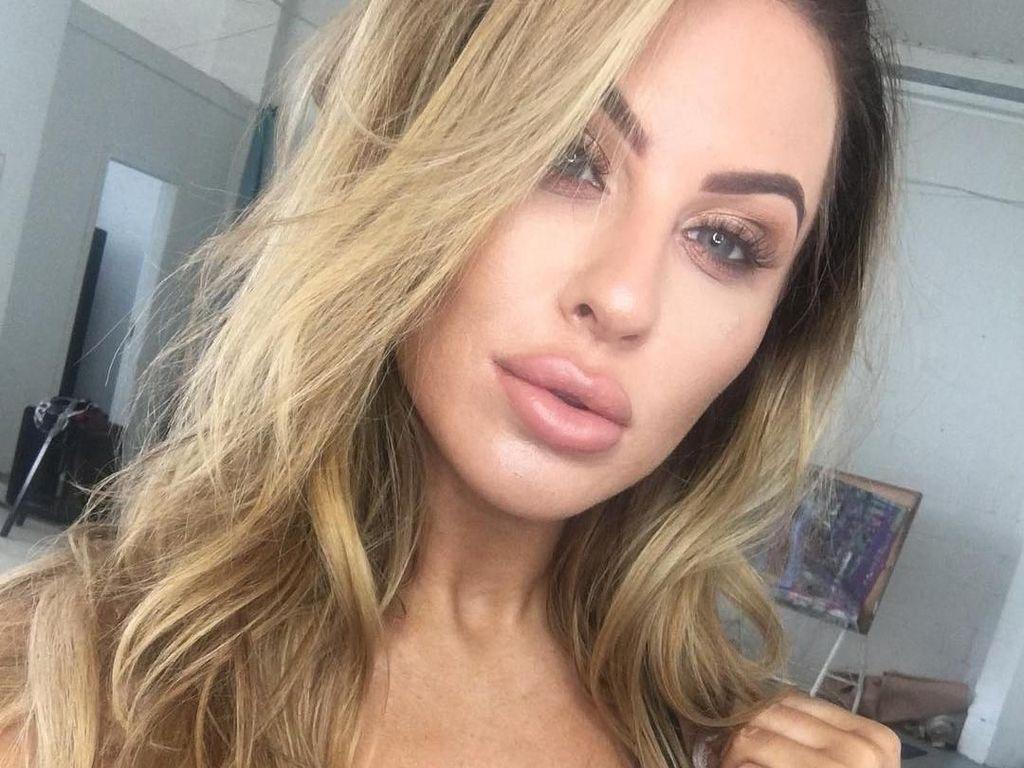 Potret Selebgram yang Bibirnya Kempes Setelah Hapus Filler ala Kylie Jenner