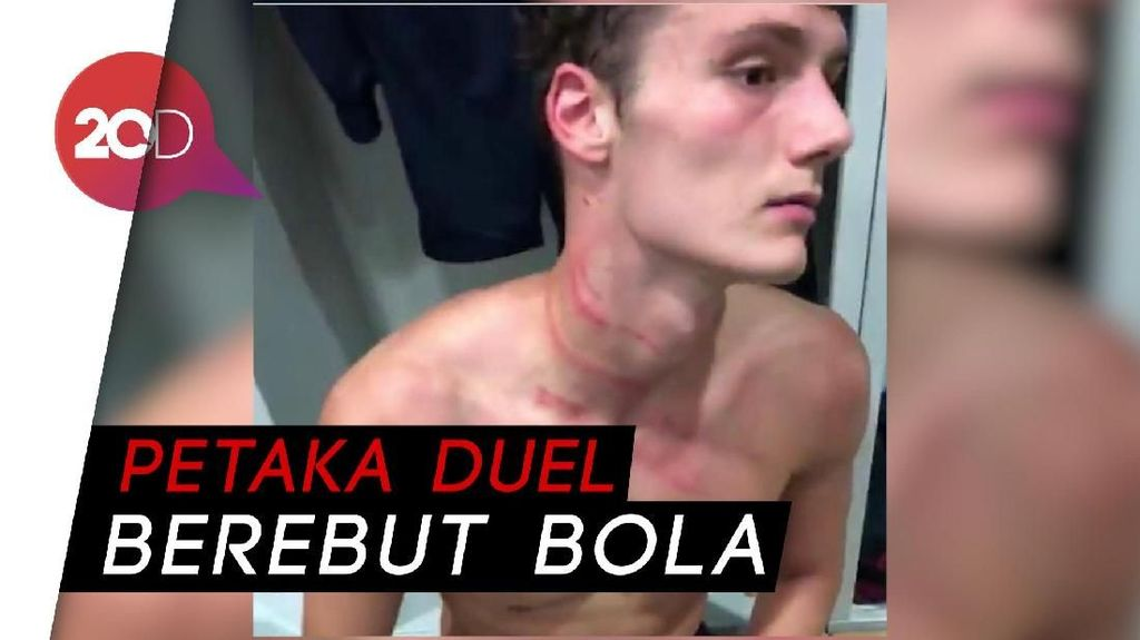 Ngeri! Ini Kondisi Leher Pavard Usai Diinjak Antonio Rudiger