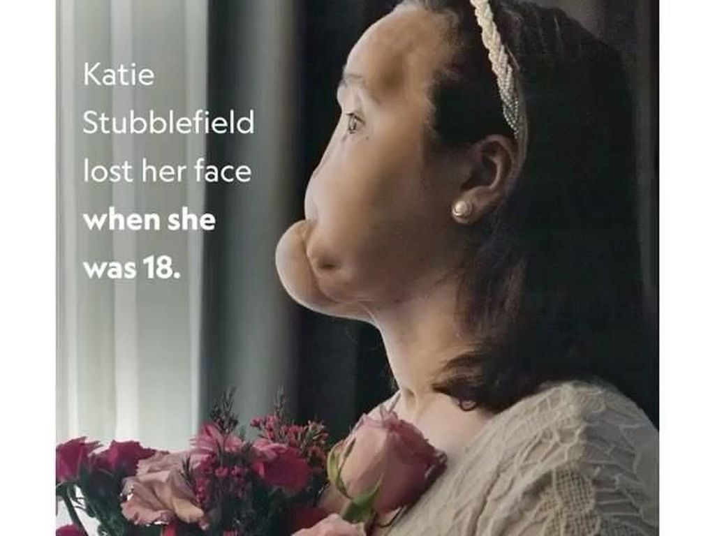 Potret Transformasi Wanita Muda Penerima Transplantasi Wajah