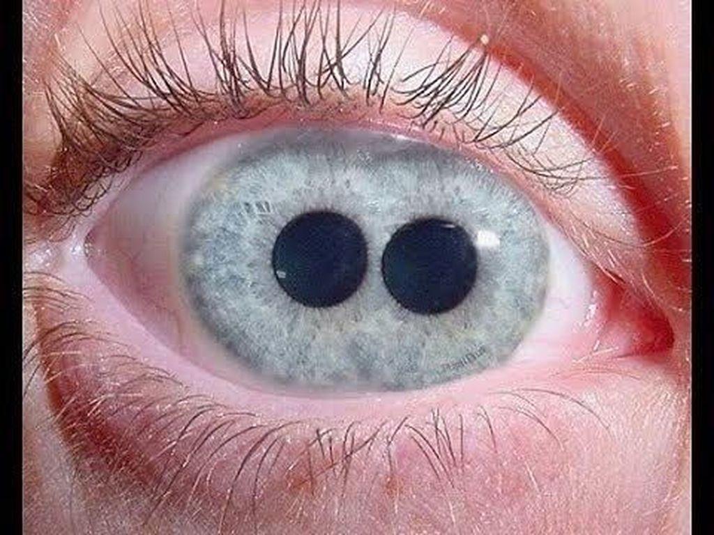 Mengenal Polycoria, Satu Mata Memiliki Dua Pupil atau Lebih