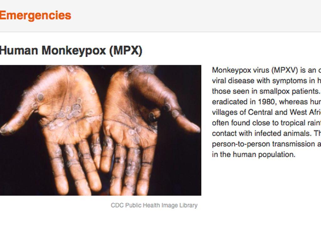 Soal Cacar Monyet, Kemenkes Minta Masyarakat Tak Panik