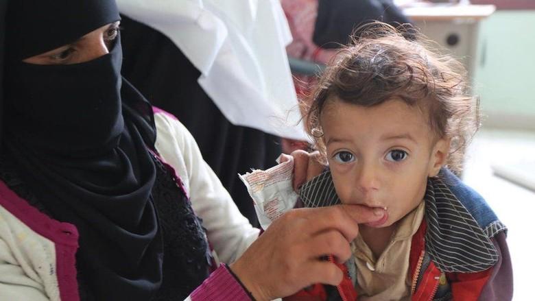 Kelaparan Ancam 5 Juta Bocah Yaman, Bayi Terlalu Lemah Untuk Menangis