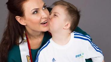 Dikritik Punya Anak Downs Syndrome, Aktris Tampar Penonton Talkshow