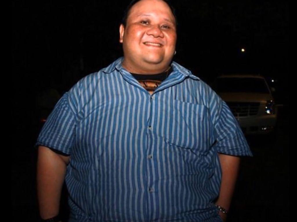 Rony Dozer Dilarikan ke Rumah Sakit Usai Kaki Bengkak karena Diabetes
