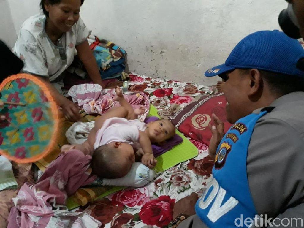 Bayi Kembar Siam di Gunungkidul Hanya Punya 1 Usus Besar