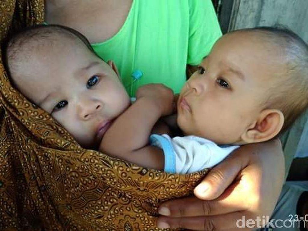 Menjenguk Meisya dan Meikha, Bayi Kembar Siam dari Gunungkidul