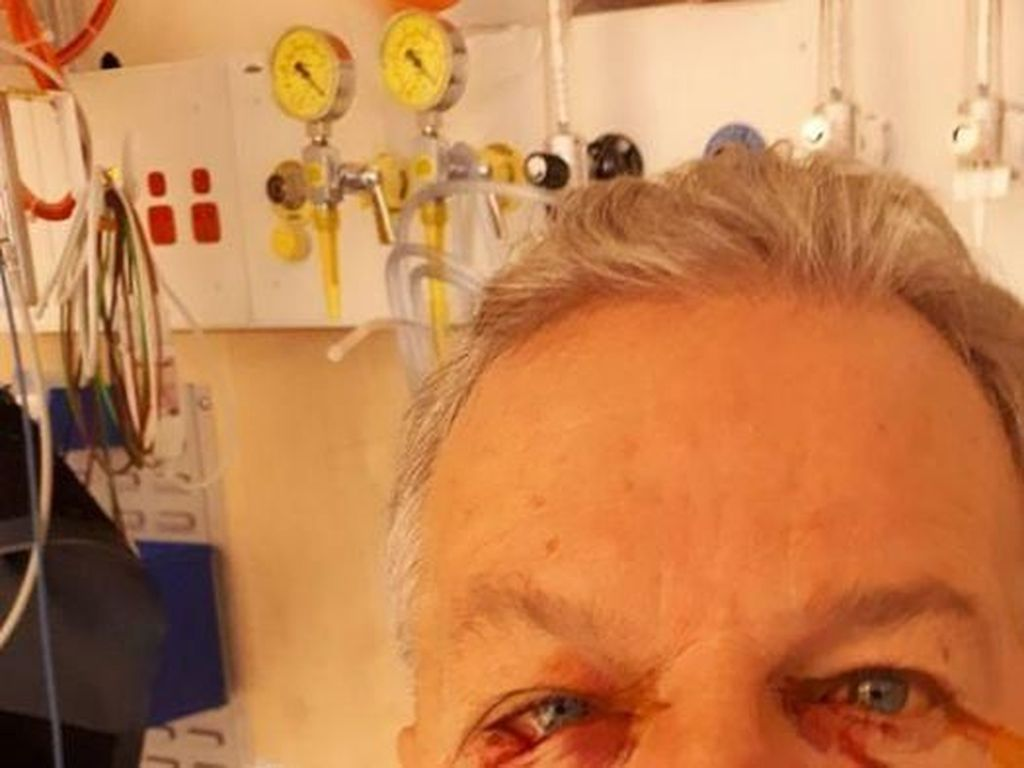 Seorang Warga Canberra Diserang Kanguru yang Dikira Sudah Mati