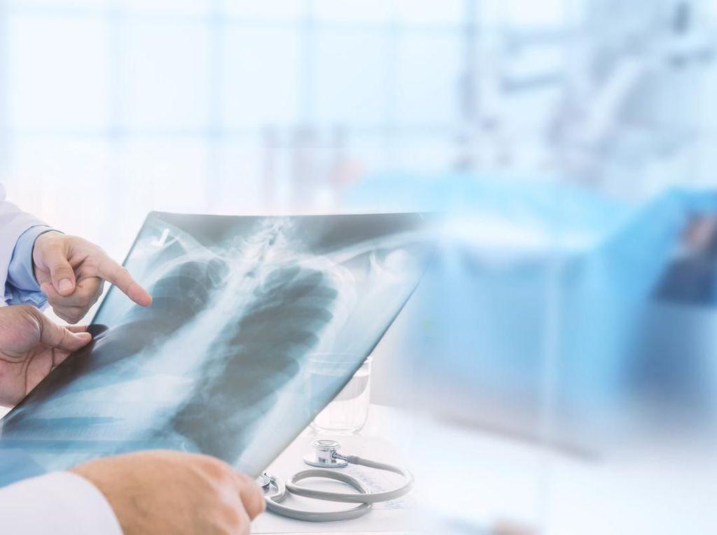 Dua Warga China Terdiagnosis Wabah Pneumonik
