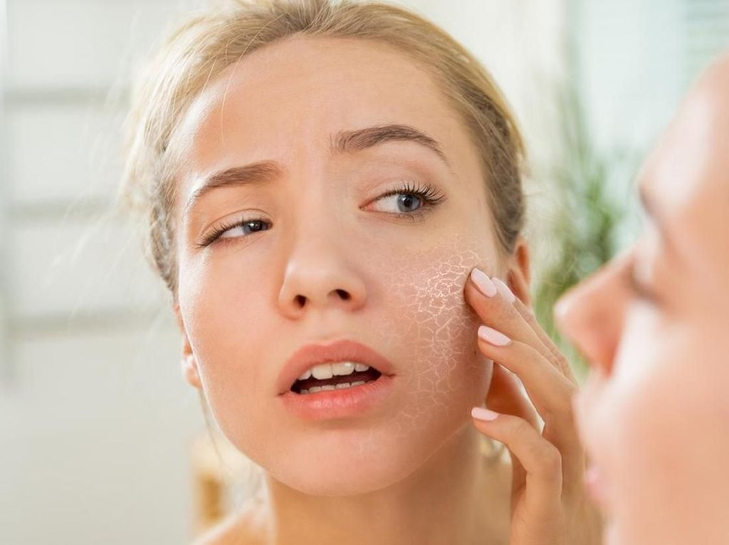 Efek Purging Setelah Coba Skin Care Baru, Amankah?