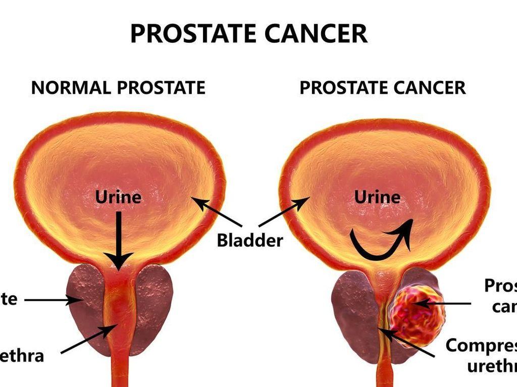Ada Kanker Prostat dan Pembesaran Prostat, Apa Bedanya?