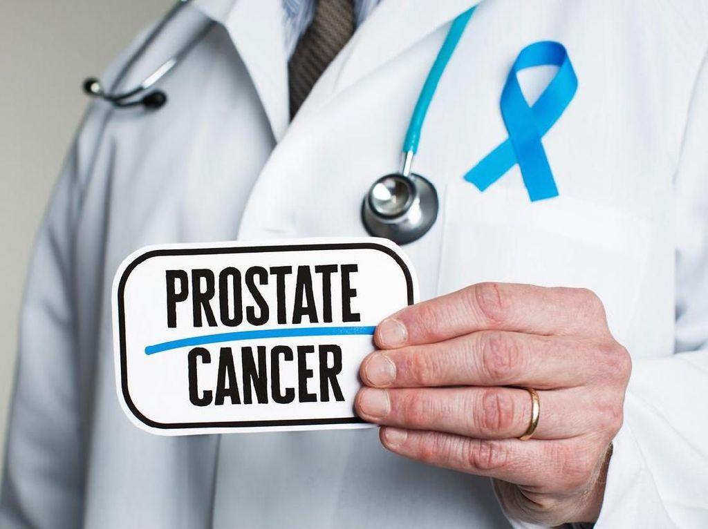 Hidup Sehat Kok Kena Kanker Prostat? Ini Penjelasan Dokter