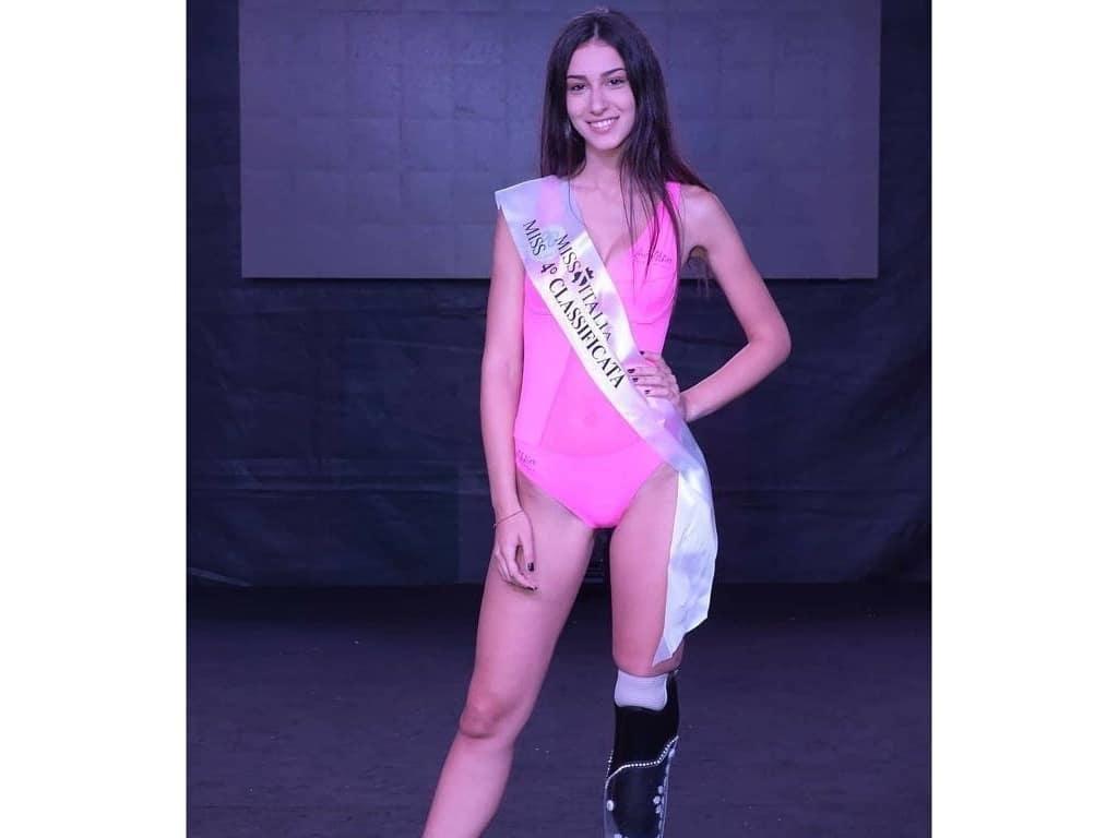 Cantiknya Model Berkaki Buatan yang Jadi Juara 3 Miss Italy