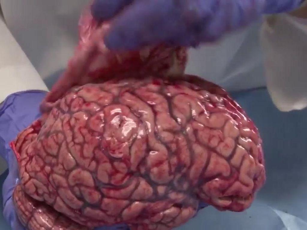 Waduh! Gadis  Kecil Ini Dipaksa Kekasih Makan Otak dan Hati Manusia