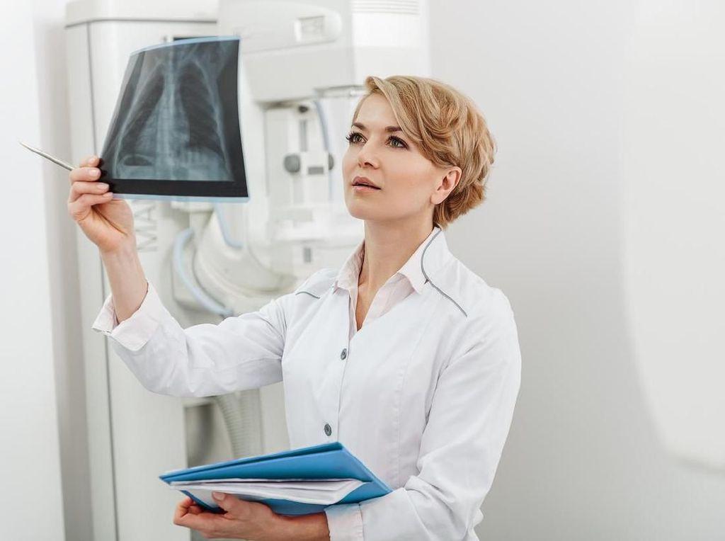 Non-Perokok Tapi Meninggal karena Kanker Paru, Dokter Jelaskan Kemungkinannya