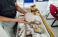 Traveler bisa memegang otak yang sudah diawetkan (dok. NIMHANS)