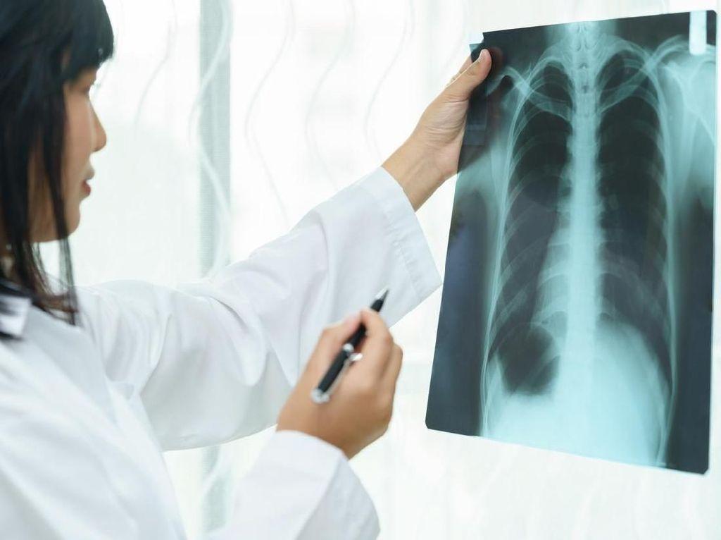 Hati-hati Pakai Asbes di Rumah, Bisa Picu Kanker Paru hingga Ovarium