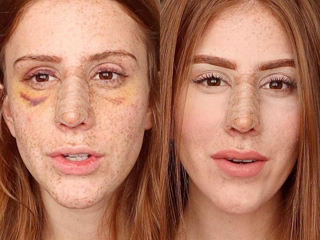Viral, Selebgram Tampilkan Video Transformasi Hidung Setelah Oplas