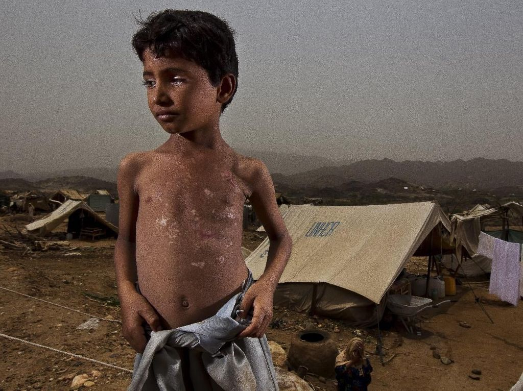 Dokter Bekasi di Perang Yaman