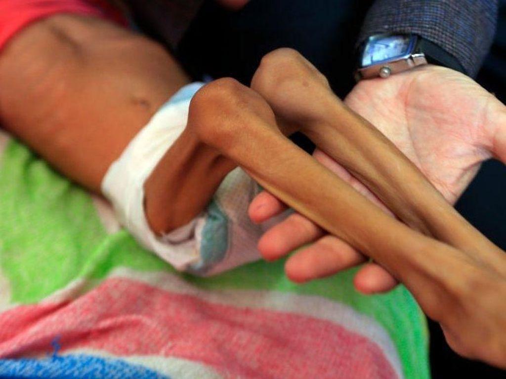 PBB Catat 7 Juta Anak-anak Yaman Alami Kelaparan