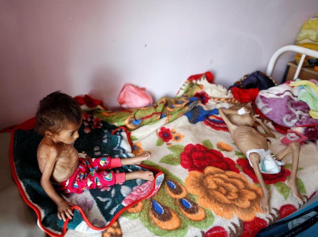 Memilukan! Perang Bikin 85 Ribu Anak-anak Mati Kelaparan di Yaman