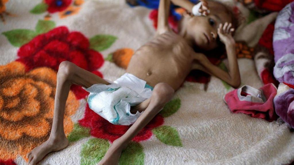 Potret Mengenaskan Anak-anak Yaman Akibat Konflik Berkepanjangan