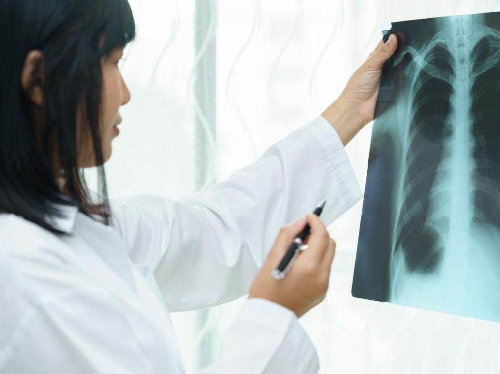 Pneumonia Misterius Gemparkan China, Bocah di Singapura Sempat Diisolasi
