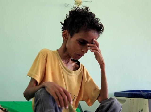 Gizi Buruk Menghantui Kehidupan Anak-anak di Yaman