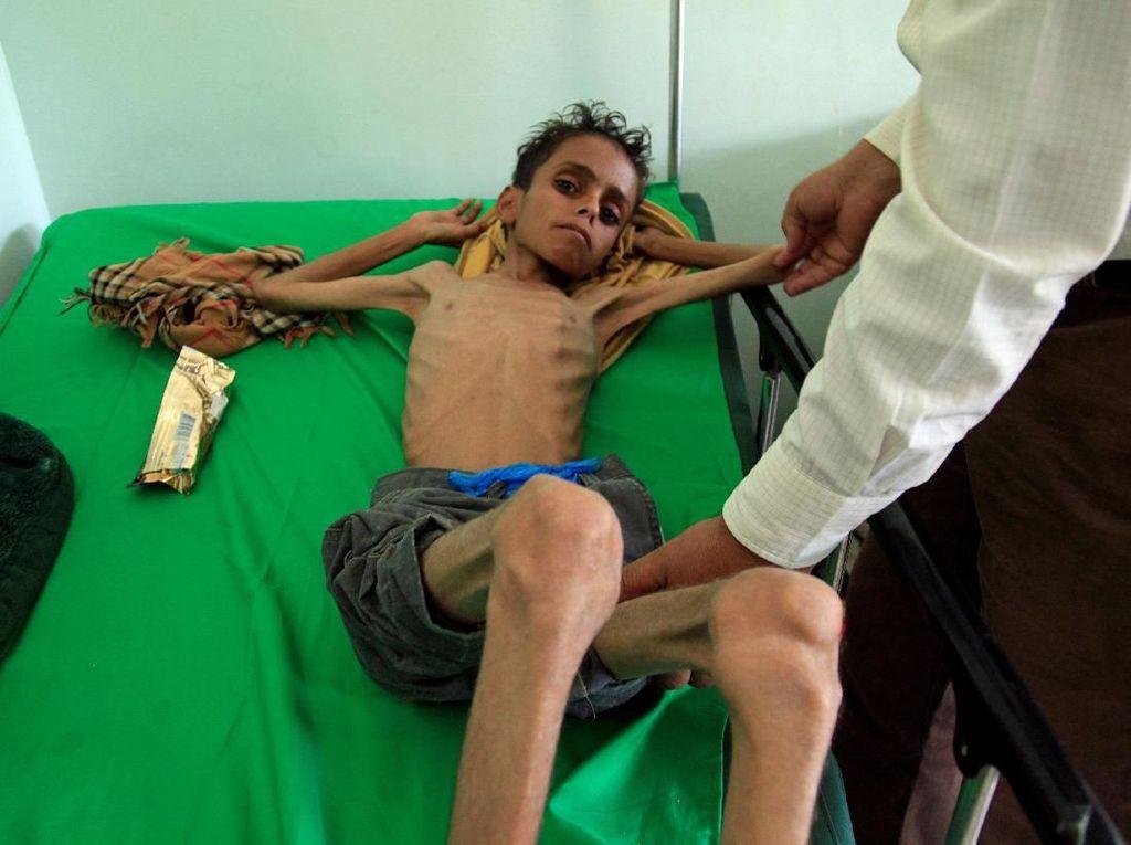 Sekjen PBB: Lebih dari 80 Ribu Anak Mati Kelaparan di Yaman
