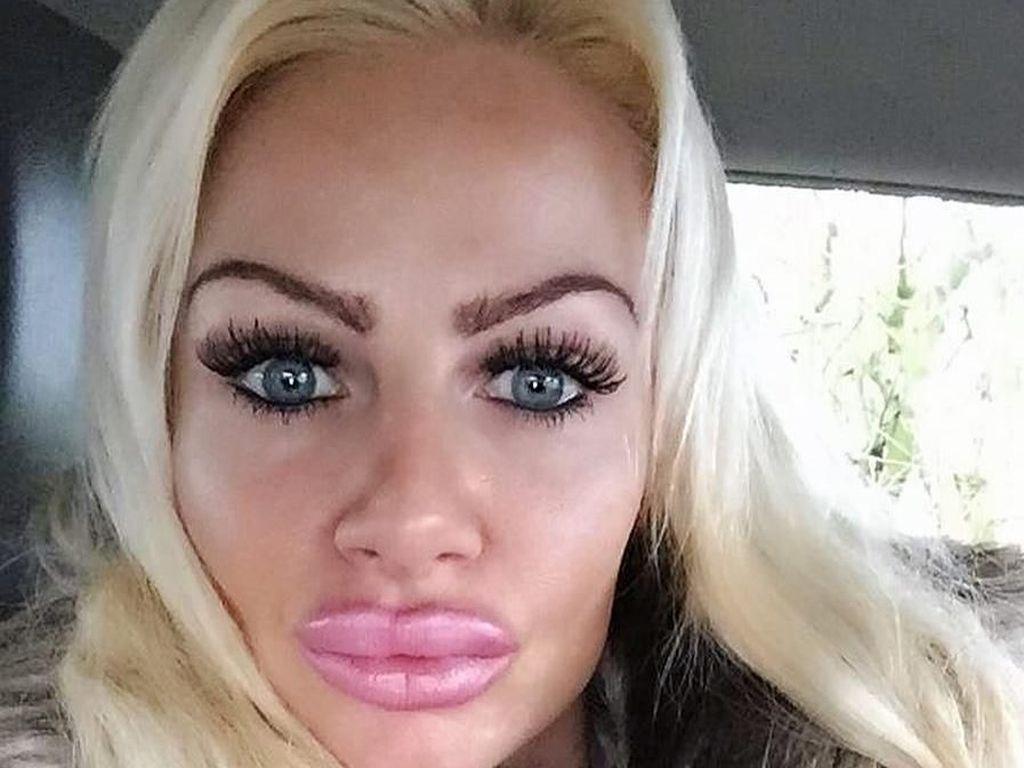 Ngeri! Bibir Wanita Ini Jontor karena Suntik Filler Dicampur Baby Oil