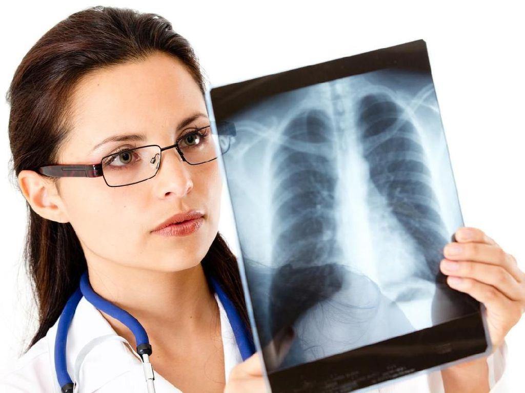 Pneumonia Vs Paru-paru Basah, Sama atau Beda? Ini Kata Dokter