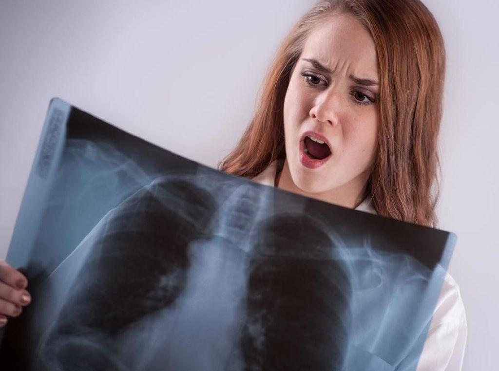 5 Gejala Kanker Paru yang Kerap Terabaikan, Salah Satunya Nyeri Dada