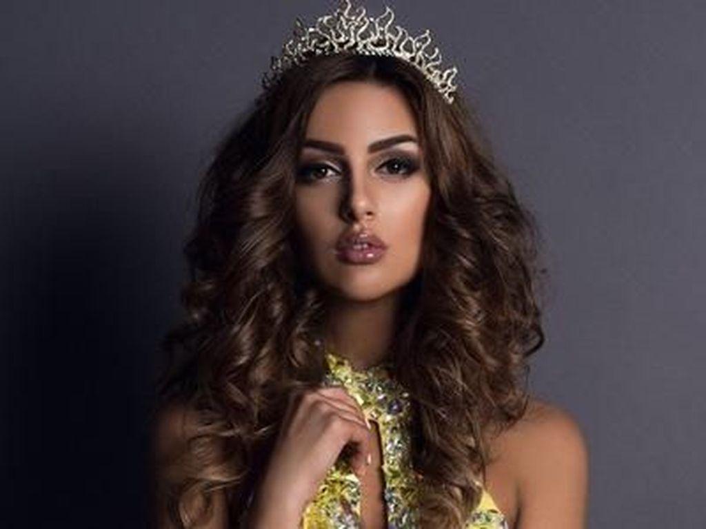 Potret Ratu Kecantikan Rusia, Istri Raja Malaysia yang Turun Takhta