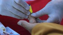 Ramai Teori Konspirasi yang Menyebut HIV-AIDS Tidak Nyata