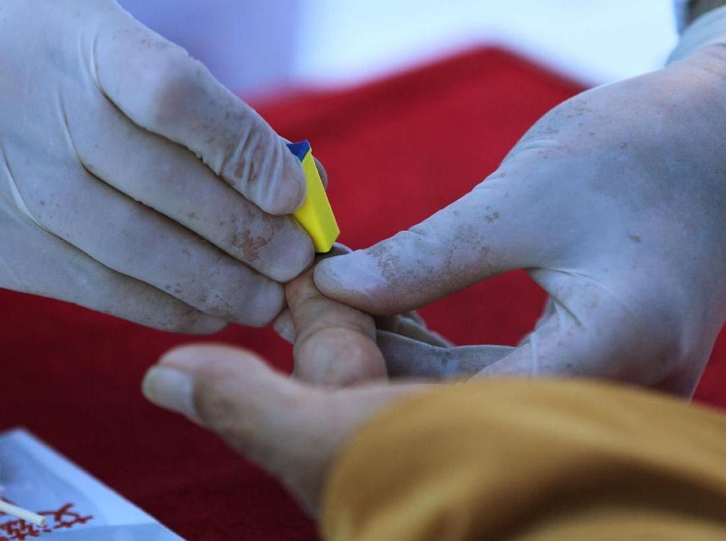 Begini Kiat Sukses Namibia Berantas HIV dan AIDS