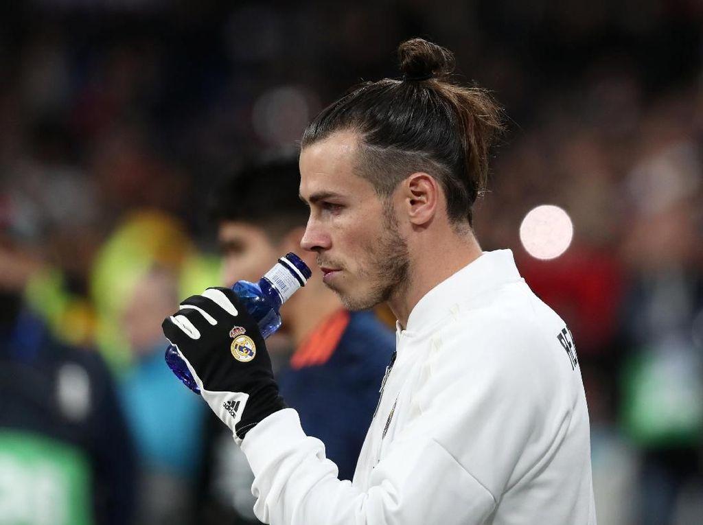 Cedera Bale Tidak Serius, Kok...