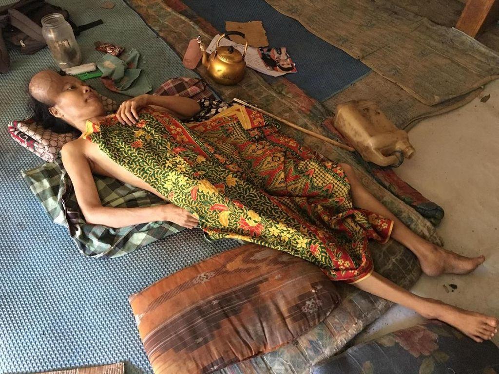Kisah 2 Bocah Miskin Rawat Ibunya yang Lumpuh Hadapi Tumor Ganas