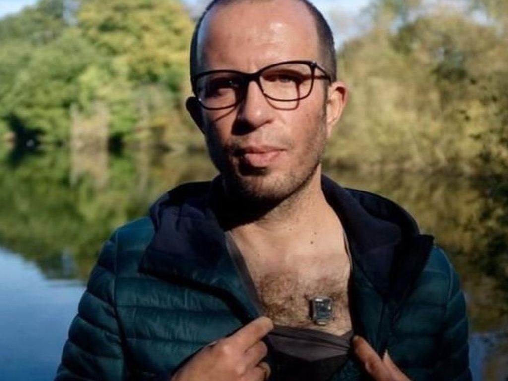 Peretasbio: Orang-orang yang Meretas Tubuh Mereka Sendiri