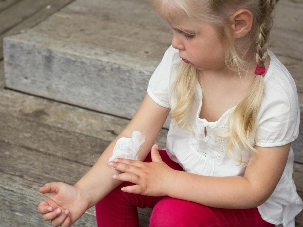 8 Bahan Alami untuk Atasi Biang Keringat pada Anak