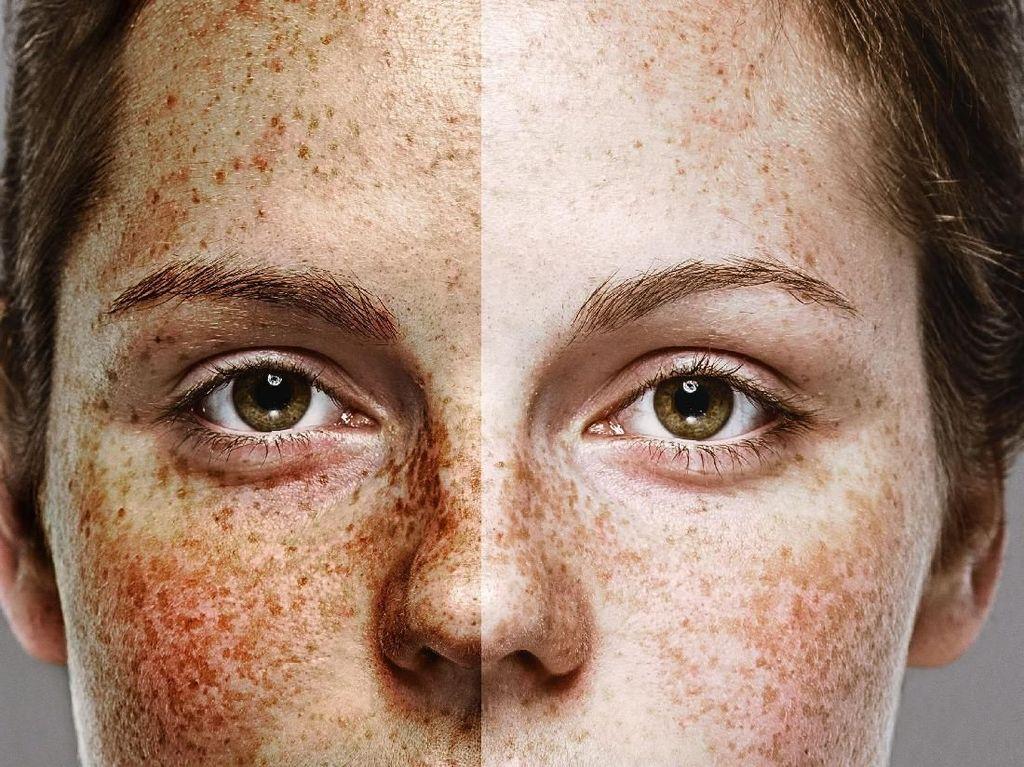 5 Efek Mengerikan Narkoba pada Kulit Wajah, Jangan Coba-Coba