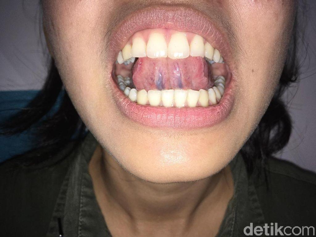 Deteksi Sariawan Biasa atau Kanker Mulut dengan Teknik SAMURI