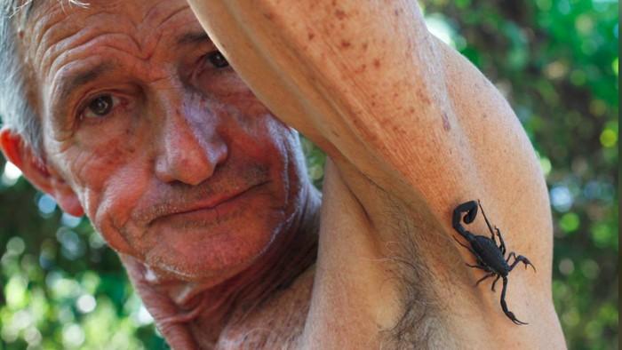 Terapi racun kalajengking cukup populer di Kuba. (Foto: Reuters)