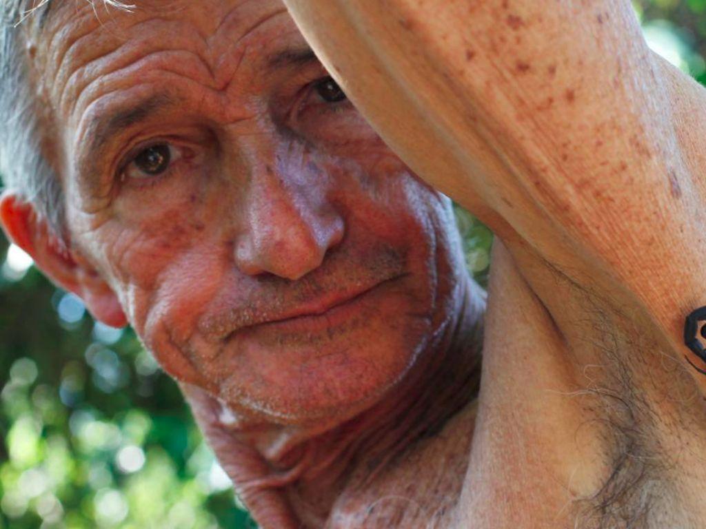 Racun Kalajengking Jadi Pengobatan Alternatif Populer di Kuba