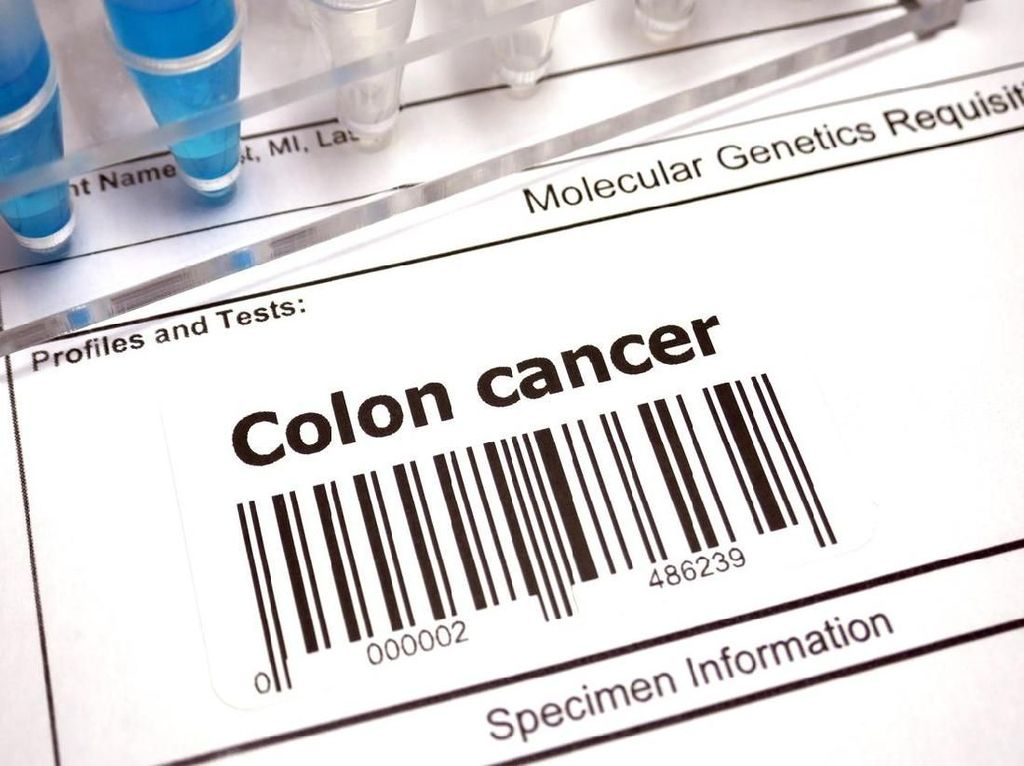 Soal Obat Kanker Usus yang Dihapus, Ini Kata Perhimpunan Dokter Bedah Digestif