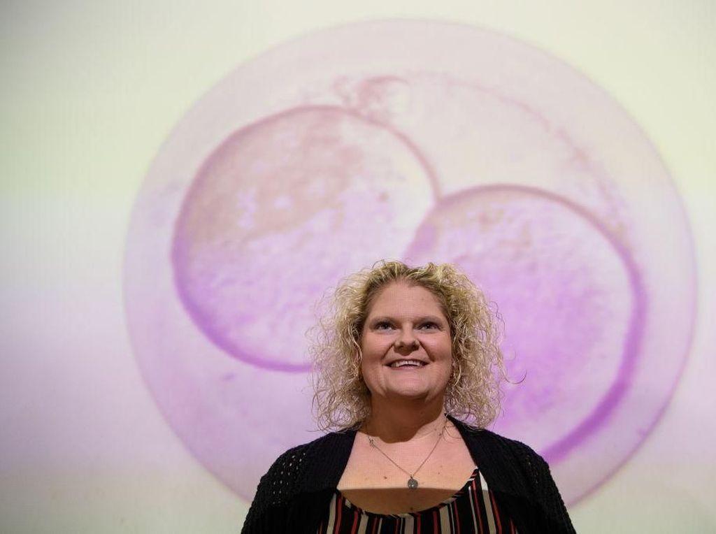 Potret Bayi Tabung Pertama di Dunia yang Kini Sudah Berumur 40 Tahun