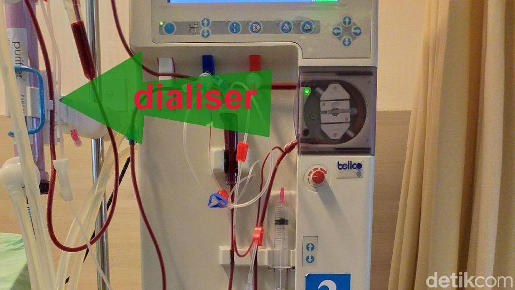 Mengenal Alat Cuci Darah yang Selangnya Sempat Jadi Heboh