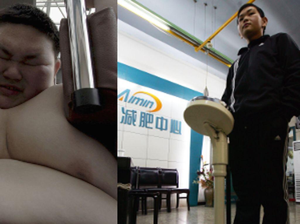 Transformasi Menakjubkan Remaja yang Sukses Turunkan 88 Kg Berat Badan